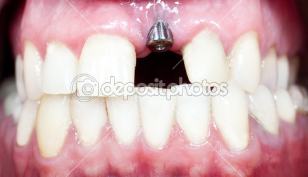 depositphotos_23913507-dental-implant